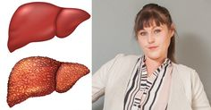 redbull liver FI