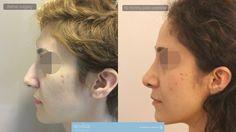 Nasenkorrektur (Rhinoplastik)  Dr. OZGE ERGUN  #rhinoplastik #nasenkorrektur