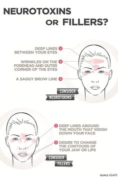 Infographic: Neurotoxins Or Fillers? - Hot Topic - NewBeauty Not sure if you need Neurotoxin or Filler treatments? This infographic breaks down which one to use based on your skincare needs. We love to share! To embed this on your site, . Facial Fillers, Botox Fillers, Dermal Fillers, Lip Fillers, Cosmetic Treatments, Skin Treatments, Medical Esthetician, Medical Spa, Dermatology Nurse
