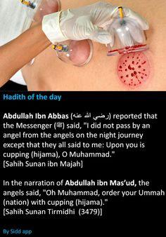 Cupping is sunnah Prophet Muhammad Quotes, Hadith Quotes, Muslim Quotes, Quran Quotes, Islam Hadith, Islam Muslim, Islam Quran, Islamic Inspirational Quotes, Islamic Quotes