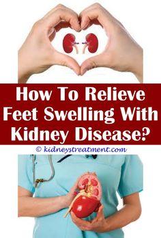500 Kidney Disease Disorders Ideas Kidney Disease Kidney Kidney Disease Symptoms