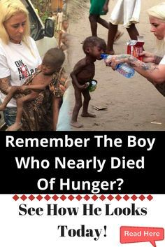 Remember The Boy Who Nearly Died of Hunger? See How He Looks Today! (Photos)