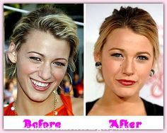 Celeb Cosmetic Surgery - Celeb Cosmetic Surgery Before And After