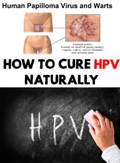 HPV is actually more prevalent than believed, approximately 90% of the population contacting it. Find out how to cure HPV naturally!