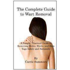 No More Moles Warts or Skin Tags!