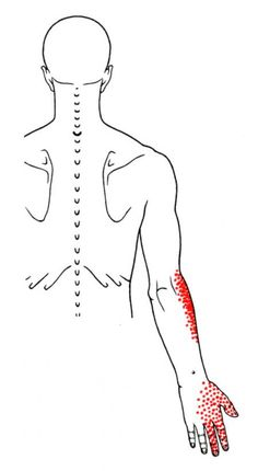 Subclavius | The Trigger Point & Referred Pain Guide.