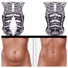 Exercises for Diastasis Recti (1) the separation in your abdomen after having…