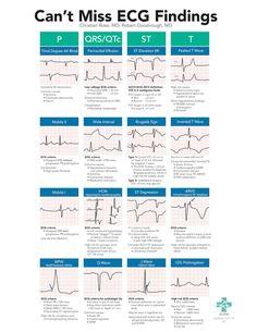 Cardiac Nursing, Nursing Mnemonics, Pathophysiology Nursing, Triage Nursing, Nicu Nursing, Med Surg Nursing, Medical Surgical Nursing, Pediatric Nursing, Nursing School Notes