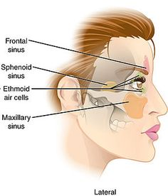 Paranasal Sinuses lat.jpg