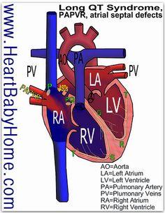 Heart Defect image: Long QT syndrome, partial anomalous pulmonary vein return, papvr, atrial septal defect, ASD
