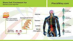 370 Best Stem Cell Therapy Sometimes A Miracle Images