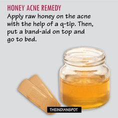 Acne is a common beauty problem. Dealing with breakouts and acne spots can be frustrating and tiring. That is why, you are going to find this post extremely useful. After reading about the easy natural acne spot treatment ideas, you do not have to worry about treating those ugly marks left behind by that bout