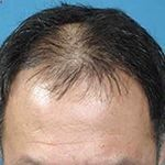 Regrow the hair you have lost in the few years. Hair loss treatments for lost caused by stress, poor diet, hereditary and other reason. Call me or visit our website for more information about hair loss related treatments.