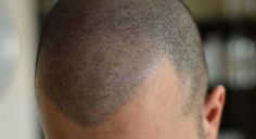 Hair Tatt is the Scalp company in California that offers natural hair loss solutions. Hair Micro Pigmentation Treatment in Los Angeles. Scalp Micropigmentation, Hair Transplant Surgery, Hair Loss Causes, Regrow Hair, Microblading Eyebrows, Shaved Head, Strong Hair, Permanent Makeup