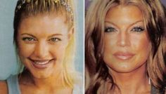 Fergie before and after