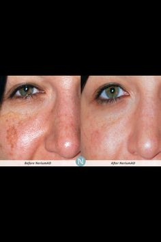 See the Nerium difference! samanthawilliamson.nerium.com