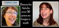 You will never ever stop smiling after you get your braces for adults over 50 off and realize the way you look. The braces for adults over 50 are of different variants to suit different kinds of teeth and budgets. Teeth Braces Cost, Dental Braces, Dental Care, Types Of Braces, Misaligned Teeth, Invisible Braces, Crooked Teeth