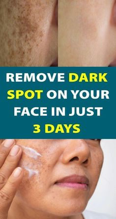 """Having """"Dark Spots On Skin"""" is one of the most irritating feeling. HERE are the Top home remedies to remove dark spots on face. Good Skin Tips, Skin Care Tips, Brown Spots On Hands, Dark Spots On Face, Remover Manchas, Dark Under Eye, Skin Spots, Too Faced, Brown Skin"""