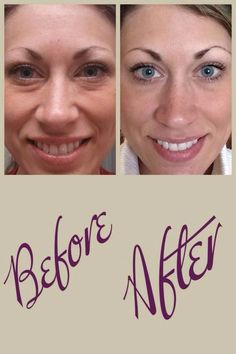 4 weeks with Rodan + Fields eye cream! (One of our best sellers!) She's actually wearing more make up in her 'before' picture Rodan Fields Skin Care, Rodan And Fields Redefine, Redefine Regimen, Eye Cream For Dark Circles, Reduce Dark Circles, Best Eye Serum, Homemade Eye Cream, Rodan And Fields Business, Rodan And Fields Consultant