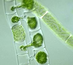 Spirogyra--filamentous green algae