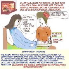 nursing compartment syndrome | Dearnurses.org - NURSING FUNDAMENTALS IN THE CLINICAL SETTING - 1 Tibial Plateau Fracture, Compartment Syndrome, Fundamentals Of Nursing, Nclex, Clinic, How Are You Feeling, It Cast, Feelings