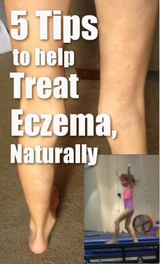 Ditch the medications and steroid creams. Your don't have to suffer from eczema, psoriasis or dermatitis. Learn what to us and what to avoid to heal damaged, irritated, sensitive skin. http://eraorganics.com/8-years-of-eczema-treated-in-days-with-a-few-simple-tricks/