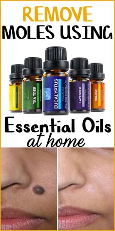 Essential oils to remove moles at home: When it comes to getting rid of moles naturally, essential oils are deemed to be of great value. An essential oil is a hydrophobic liquid consisting volatile aroma composition.