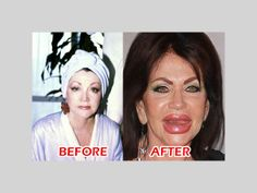 Here's the thing: Giant, out of proportion lips make women look much, much OLDER, always.