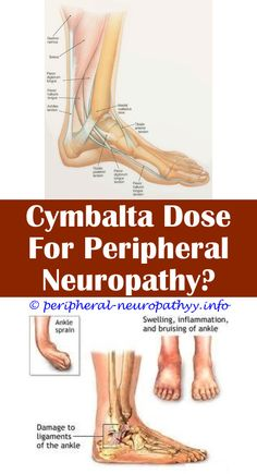 4 Excellent Tricks: What Can Cause Neuropathy Other Than Diabetes whole body neuropathy.Icd 9 Code For Optic Neuropathy treatment induced diabetic neuropathy.Gabapentin And Neuropathy. Peripheral Nerve, Peripheral Neuropathy, Nerve Fiber, Nerve Pain, Doterra, Diabetes, Neuropathic Pain