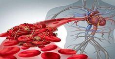 ΤΕΡΑΣΤΙΑ ΠΡΟΣΟΧΗ! Θρομβοεμβολή στις γυναίκες: Ο παράγοντας που αυξάνει τον κίνδυνο: http://biologikaorganikaproionta.com/health/229509/