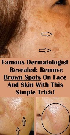 Numerous people find the age spots on their skin a huge problem, as they lower their self-esteem and look unattractive...
