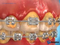 ▶ Please brush your teeth and gums well with your braces - YouTube