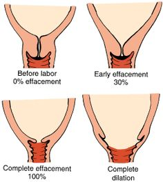 What is progress in labor all about? There are many factors other than dilation!