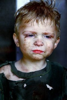 Living in poverty. Poor Children, Save The Children, Precious Children, Beautiful Children, Kids Around The World, People Of The World, Child Face, My Heart Is Breaking, Photos Du