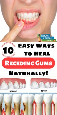 10 Easy Ways to Heal Receding Gums Naturally! Did you know that your dental health is directly related to your overall health Because our mouths are filled with bacteria is part of Receding gums - Teeth Health, Healthy Teeth, Dental Health, Oral Health, Dental Care, Health Tips, Gum Health, Health Benefits, Lemon Benefits