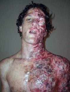 Burn victim costume