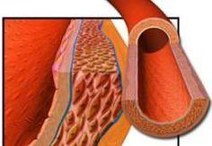 Fármaco mostra resultados promissores contra a hipertensão
