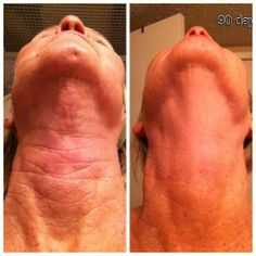 Photos are great, but these results in person are even more impressive.  If you're interested in what your results might be, check it out @ nannystrom.nerium.com