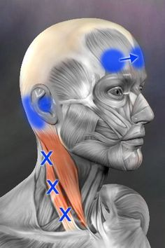 These trigger points in the sternocleidomastoid can refer pain into the ear, and also, when stimulated, cause pain to move across the forehead. I don't think any other trigger point does that!