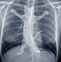 x-ray Art Print by Tummeow