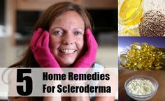 Scleroderma is a disease of the connective tissue that brings changes in the skin, blood vessels, internal organs and the muscles. It is a kind of autoimmune disorder. The immune system malfunctions and starts to destroy the healthy tissue of the body. The cause of this disease is not known but people suffering from this disease have a buildup of collagen in the skin and other organs of the body. Scleroderma mostly affects women between the ages of thirty to forty.Some types of scleroderma…