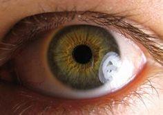 Nueva técnica para el estudio de las enfermedades de la retina