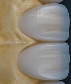 My inspirations @drericdds @renato_ferreira_orthos @_carlosdecarvalho #macrophotography #teeth #dentistry #dentist #aestheticdentistry #dentalphotography #dentalphotographgroup #photogtaphy #photographer #nikon #105mm #macro #dentaltechnician #dentallab #restorativedentistry #veneers #estheticdentistry #ivoclar #art #cosmeticdentisrty #passion #handcrafted