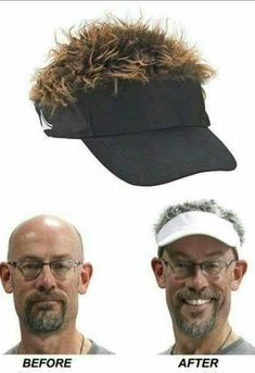 Now you can go from that tired comb over to perky, spikey hair that needs no maintenance and comes with a golf visor to boot! Joke Gifts, Gag Gifts, Silly Gifts, Prank Gifts, Hair With Flair, Flair Hair, Losing Hair Women, Funny Birthday Cakes, Carnival