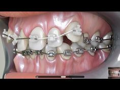 Dental Braces VS. Damon Braces  order brackets and arch wires and more products , welcome SINO ORTHO online shop or send us inquiry at sinoorthofrost@hotmail.com    http://www.alibaba.com/product-detail/Sino-ortho-dental-ceramic-brackets-class_1765946537.html?spm=a271v.8028081.0.0.sLUkYx