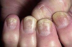 L'onicomicosi è un'infezione da funghi che colpisce mani e piedi, provocando l'alterazione del colore dell'unghia, e la sua desquamazione; colpisce il 3-4