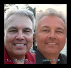 Eight months ago my husband started using our Beyond The Shave Products and later added the Reverse Line with the REVERSE Skin Lightening Accelerator Pack.  Eight months of CONSISTENCY and HUGE changes. Note, the before picture was taken almost 3 years ago! He looks younger and more vibrant now! Guys! These products are not just for women! Our products work!! Use them and if you don't see changes after 60 days we have a 60 day money back guarantee! Message or call me to get started!