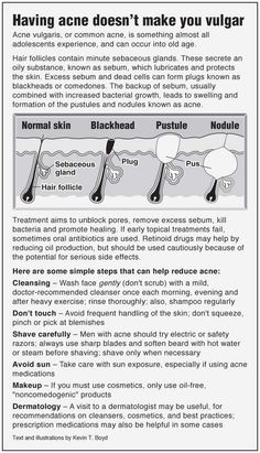 Information graphic about acne vulgaris or common acne, with tips on prevention.