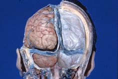 Exploration of the meninges and brain in situ   On the right…   Flickr