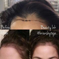 Hairline Microblading✒️🤘🏼 This client has beautiful long hair but has always struggled with her balding hairli. Bad Hairline, Hairline Tattoos, Hair Tattoos, Thinning Hairline, Hair Transplant Women, Medium Hair Styles For Women, Fringes, Beauty Tips, Up Dos